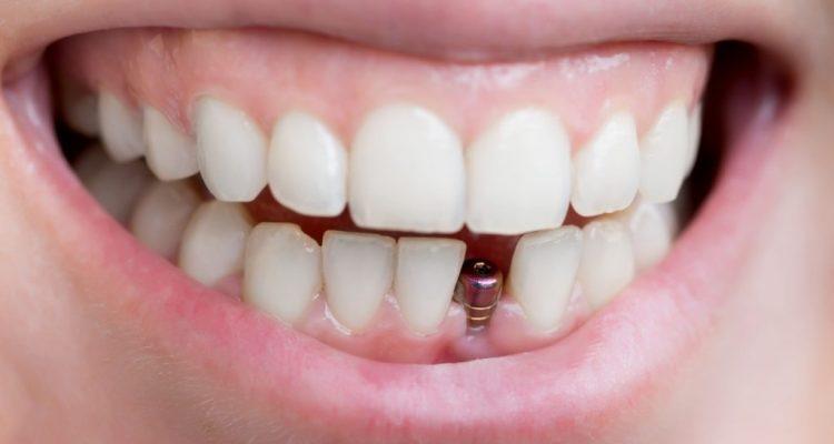 comment se faire poser un implant dentaire crfi. Black Bedroom Furniture Sets. Home Design Ideas