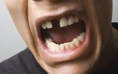 conna tre le v ritable prix d 39 un implant dentaire crfi. Black Bedroom Furniture Sets. Home Design Ideas
