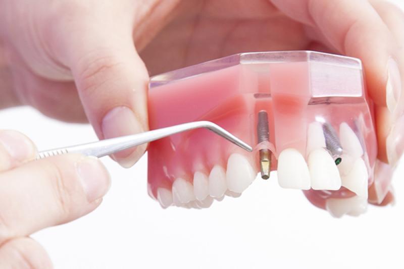 les avantages des implants dentaires crfi. Black Bedroom Furniture Sets. Home Design Ideas
