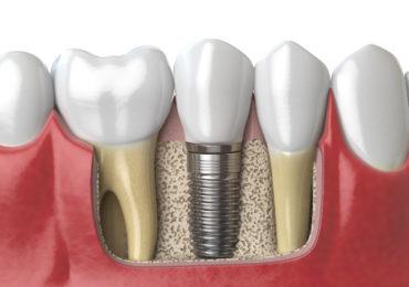 qu'est ce qu'un implant dentaire